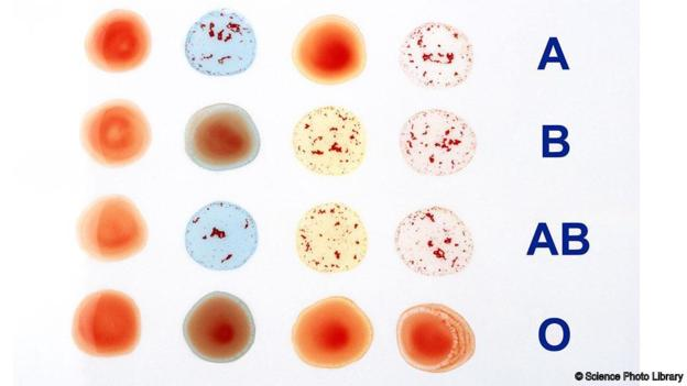 how did the appearance of the a b and rh samples for the patient with ab_ blood type
