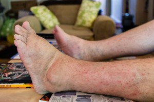 "Matt Fairchild's feet are so swollen he rarely leaves his house. ""Doctors can't really explain it, but probably a side effect of the medications or the cancer in the leg bones,"" said Fairchild. (Heidi de Marco/KHN)"