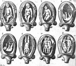 L0016294 8 representations of the foetus in the womb.