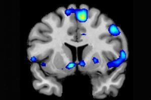 braingod01