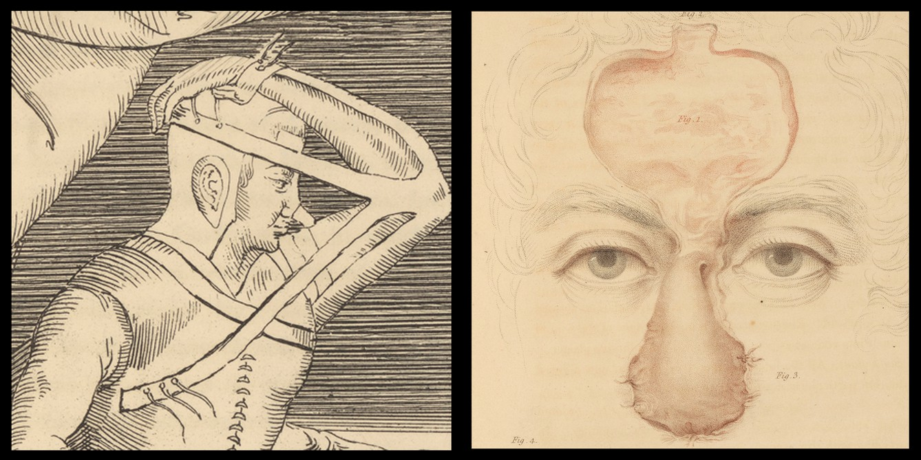 Printing the Body: Anatomical Illustration in the Early